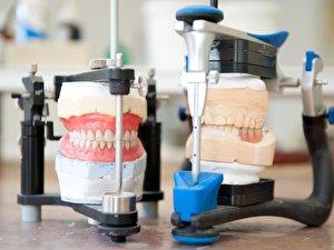 Lange dauert eingewöhnung zahnprothese