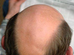 Haare transplantieren kosten türkei