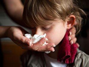Wann Nasenbluten Ein Fall Für Den Arzt Ist Berlinde