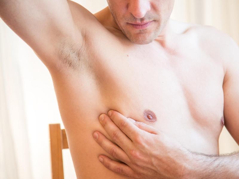 Brustwarzen blaue Brustkrebs: Die