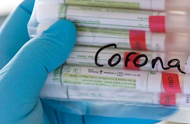 Samples for corona testing are prepared to a laboratory for further investigation.